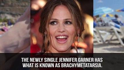 10 Celebrities With Physical Deformities