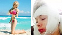 Human Barbie attacked, strangled outside her home: It happened in a flash