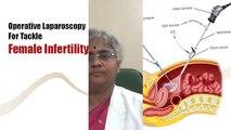Female Fertility Treatments In Tamilnadu - Best Infertility Clinic In India
