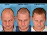 Natural Remedies To Cure Baldness & To Stop Balding - Baldness Treatment
