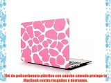 Carcasa para MacBook Air 11Funda Carcasa de Protector de para Apple MacBook Air 11 pulgadas