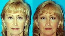 Plastic surgery gone wrong facelift without surgery
