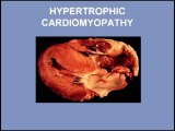 Heart Sounds - Hypertrophic Cardiomyopathy and Mitral Valve Prolapse (480p)
