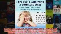 Download PDF  Lazy Eye  Amblyopia Lazy eyes treatment correction and surgery What is lazy eye FULL FREE