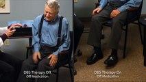 Symptomes de la maladie de Parkinson avec et sans Neurostimulateur DBS