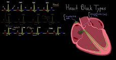 Major Types of Heart Block - Congestive Heart Failure (360p)