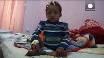 La malnutrition menace plus d'un million d'enfants au Yémen