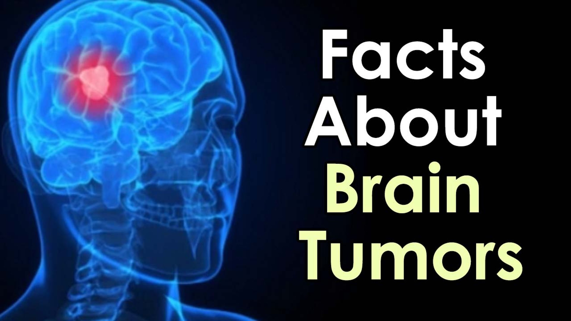Top Ten Facts About Brain Tumors || Health Facts