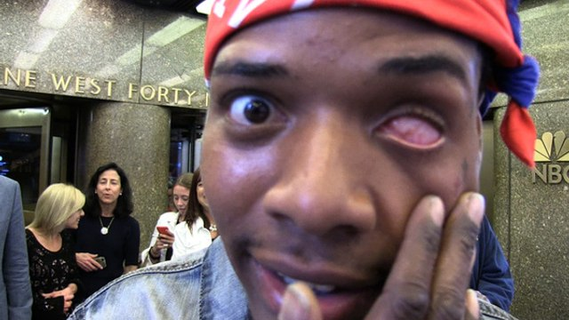 'Trap Queen' Rapper Fetty WapI Didn't Get My Eye Shot Out! That Should Be Obvious
