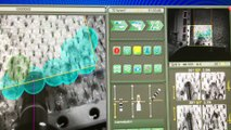 Suivi commande du robot Artas procédure de 3000 greffons The_clinic Paris