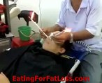 Cleanse Parasite & Worms From Human Nose & Face