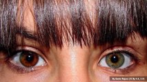 Blue Sky Science: How does someone get two different-colored eyes?