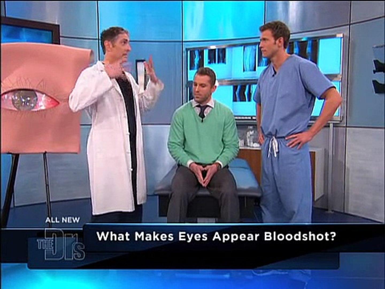Chronic Bloodshot Eye Procedure Explained Medical Course