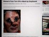 Greyhound tears ladys face off