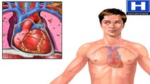 What is Coronary Artery Disease Pathophysiology of | CAD Animation - Heart Attack and Angina Video