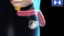 Vasectomy or Birth Control for Men and Sterilisation - Preventing Sperm