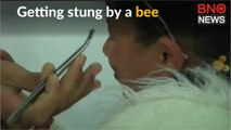Sting like a bee - alternative therapy in Gaza