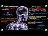 Guillain-Barre Syndrome(CBS): Causes, Symptoms & Diagnosis