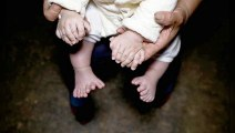 Ce bébé chinois est né avec 31 doigts et orteils !