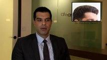 Hair Restoration Los Angeles Hair Transplant Clinic in Los Angeles