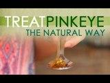 The Alternative - EP13 - Treat Pinkeye - Myx TV