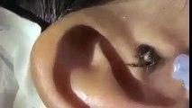 اگر کسی بچے کو کان میں درد محسوس ہو تو اس طرح پانی سے پتا چل جاتا ہے کہ کان میں کیا ہے ۔