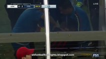 James Rodríguez Horror Injury & Substitution HD - USA 0-2 Colombia 04.06.2016 HD