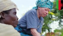 Albinos killed in Africa: Violence against albinos on the rise in Malawi - TomoNews