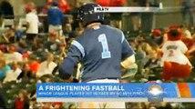 Il prend une balle de Baseball en plein visage !
