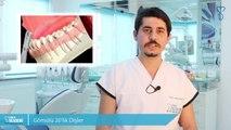20 Yaş Dişleri Nedir? Neden Ağrı Yapar? Nasıl Tedavi Edilir?