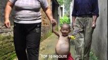 10 Personnes avec des MUTATIONS GENETIQUES EXTRAORDINAIRE ! Incroyables Mutations Très RARE