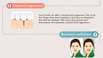 Benefits of Dental Implants - St Johns Family Dentistry