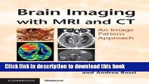 Ebook|Books} Brain Imaging with MRI and CT: An Image Pattern Approach Full Online