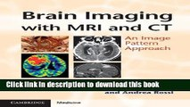 Ebook Brain Imaging with MRI and CT: An Image Pattern Approach Free Online