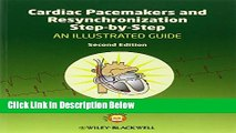 Books Cardiac Pacemakers and Resynchronization Step by Step: An Illustrated Guide Full Online