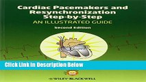 Ebook Cardiac Pacemakers and Resynchronization Step by Step: An Illustrated Guide Free Online