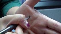 Un simple point noir sur la main d une femme qui veut dire beaucoup de choses!
