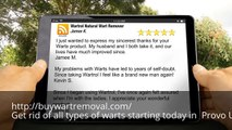 Where Can I Buy Wart Remover in Provo UT
