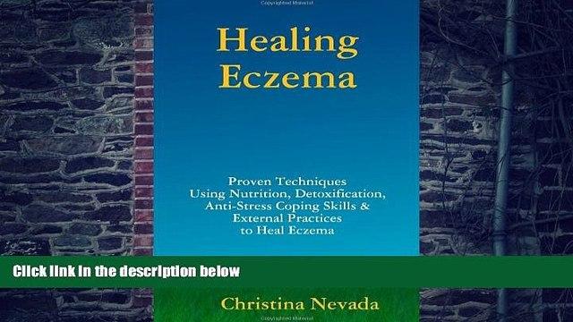 Big Deals  Healing Eczema  Best Seller Books Most Wanted