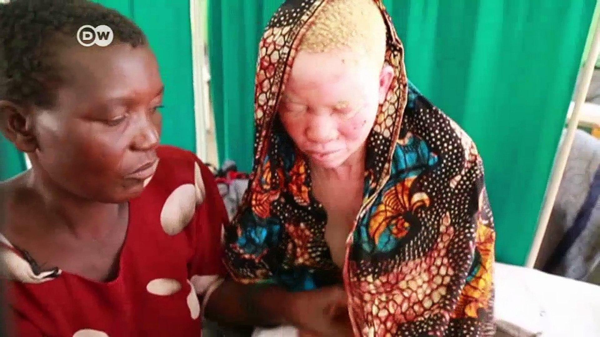 Albinos under threat in Africa   DW News