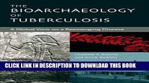 [PDF] The Bioarchaeology of Tuberculosis: A Global View on a Reemerging Disease Full Colection