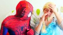 Spiderman vs Frozen Elsa vs Booger! Elsa is Sick! Superhero in Real Life ft Spidergirl & Hyonotized