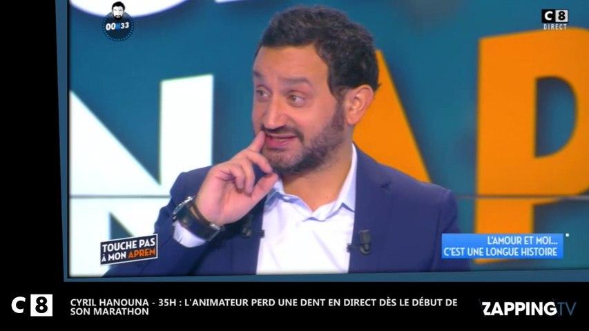 Cyril Hanouna - 35H : L'animateur perd une dent en direct dès le début de son marathon