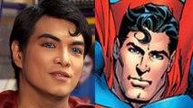 Pria operasi plastik agar mirip dengan Superman - Tomonews