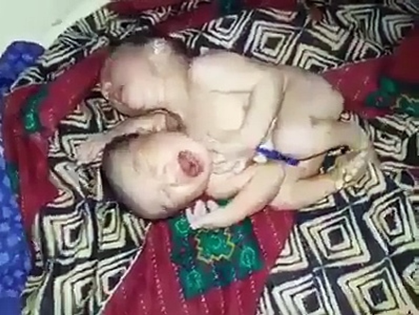 Miracle of Allah baby born with one body