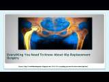 Everything You Need To Know About Hip Replacement Surgery