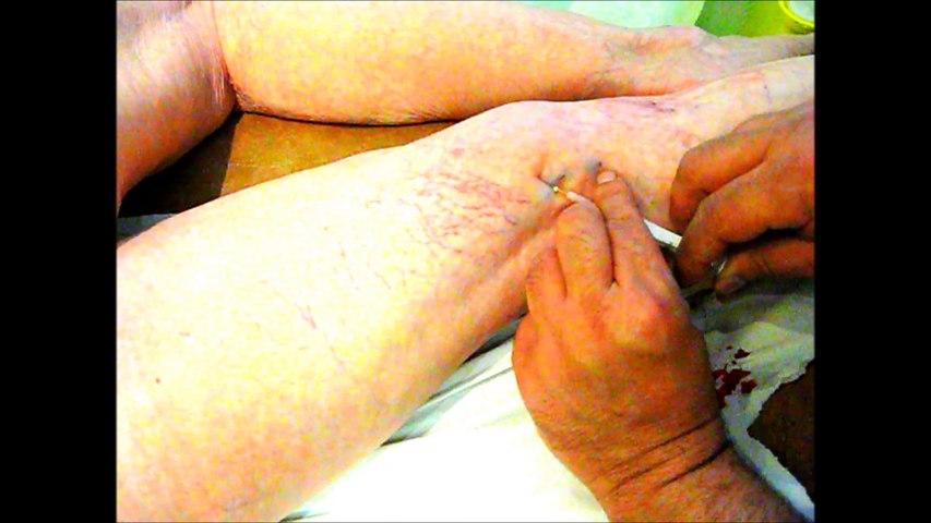 microscléroses des varices à la mousse