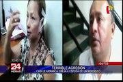 Iquitos: casi le arranca la oreja a esposa de un mordisco