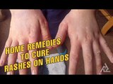 Home Remedies To Cure Rashes On Hands | Best Health and Beauty Tips | Lifestyle