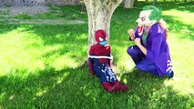Ugly Frozen Elsa Batmam Alliance vs Joker Dentist Prank! w/ Spiderman, Doctor, Mermaid Superhero lol